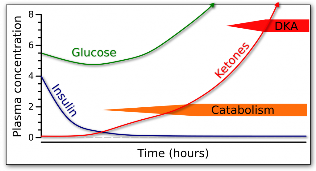 Graph of the fasting response over time in terms of glucose, insulin, and ketones in someone who can not produce endogenous insulin.